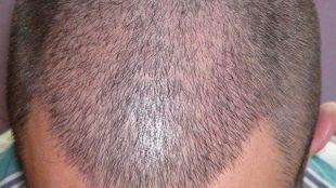 متى يبدأ الشعر في النمو