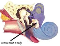 Otoskleroz oluşumu