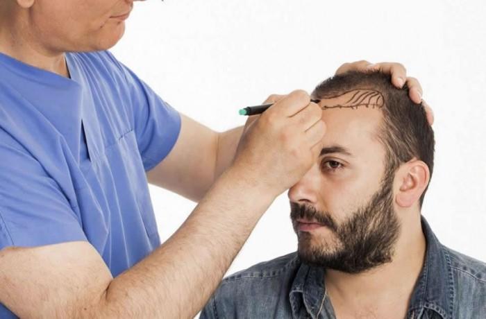 زراع الشعر بتقنية فيو (الإقتطاف)