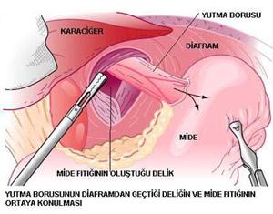 Anti-Reflü Cerrahisi